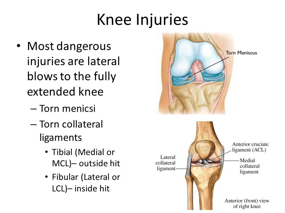 Knee Injuries Most dangerous injuries are lateral blows to the fully extended knee. Torn menicsi. Torn collateral ligaments.