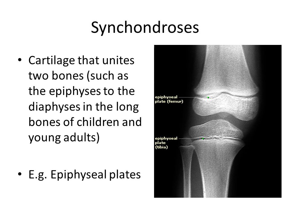 Synchondroses Cartilage that unites two bones (such as the epiphyses to the diaphyses in the long bones of children and young adults)