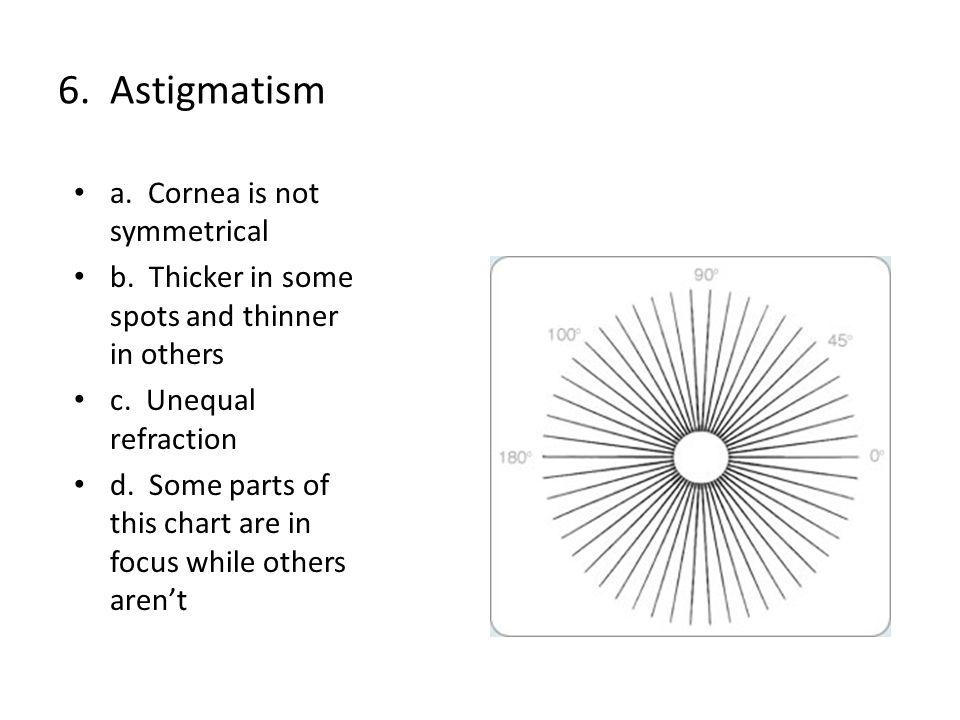 6. Astigmatism a. Cornea is not symmetrical