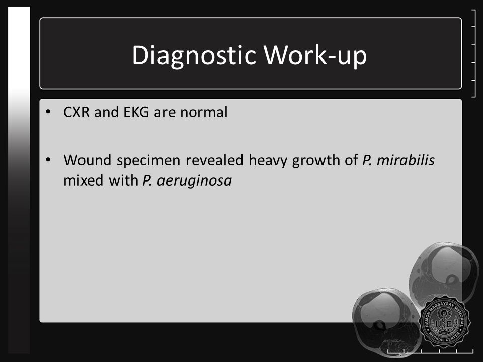 Diagnostic Work-up CXR and EKG are normal