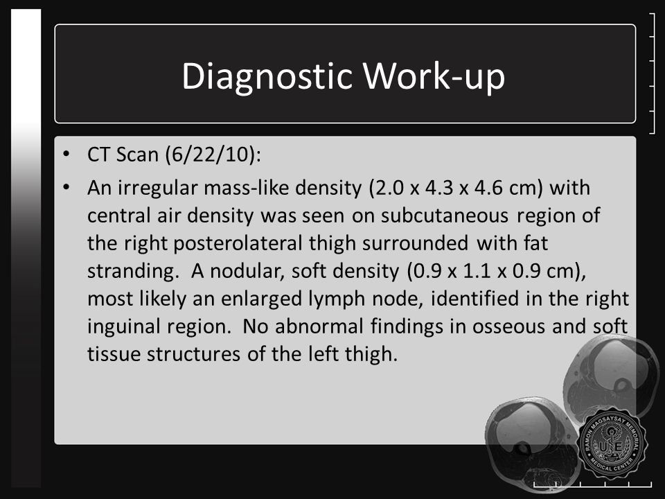 Diagnostic Work-up CT Scan (6/22/10):