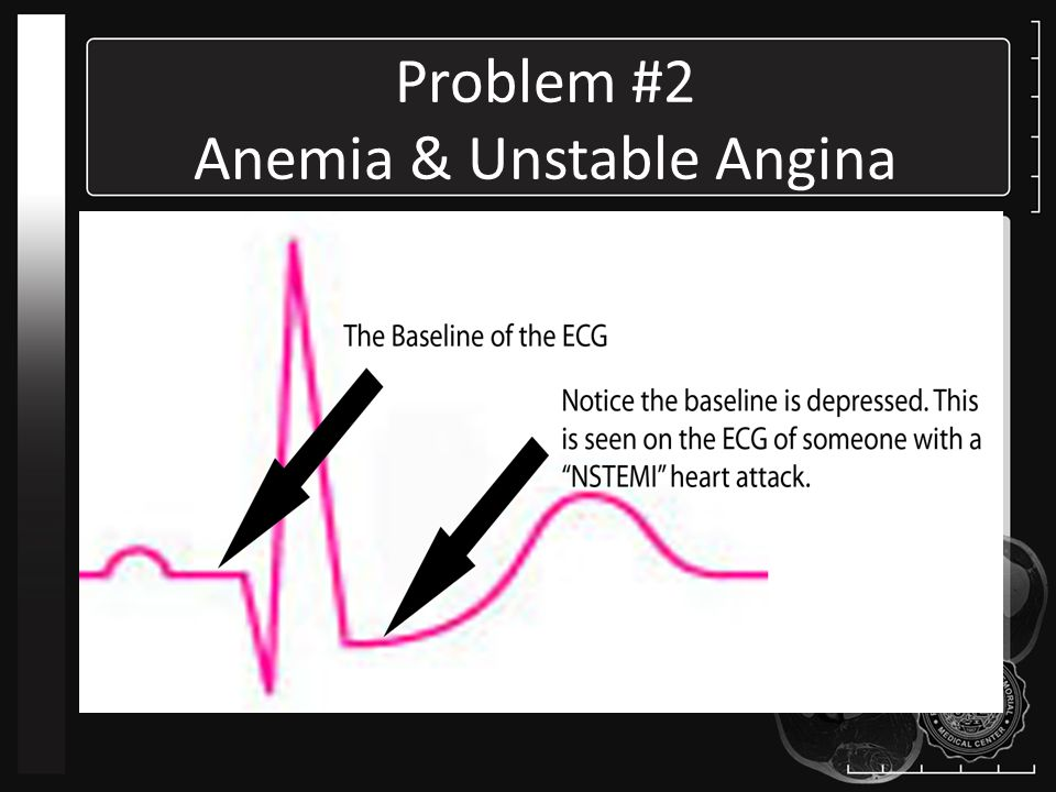Problem #2 Anemia & Unstable Angina