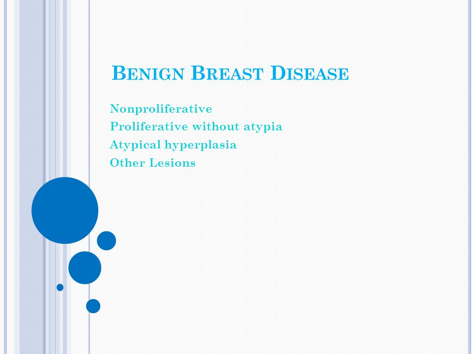 Benign Breast Disease Nonproliferative Proliferative without atypia