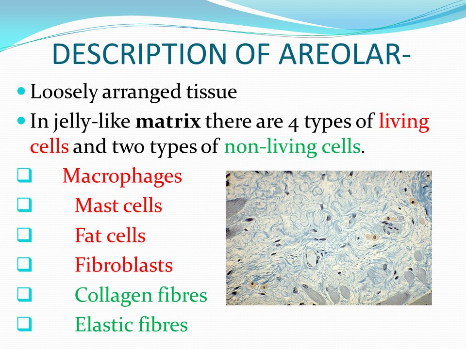DESCRIPTION OF AREOLAR-