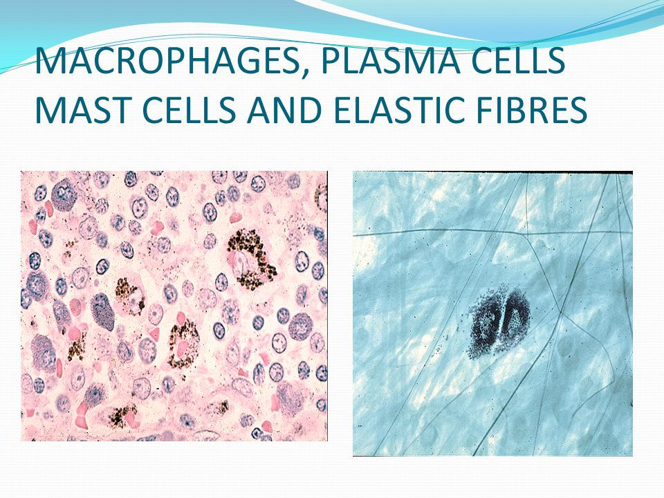 MACROPHAGES, PLASMA CELLS MAST CELLS AND ELASTIC FIBRES