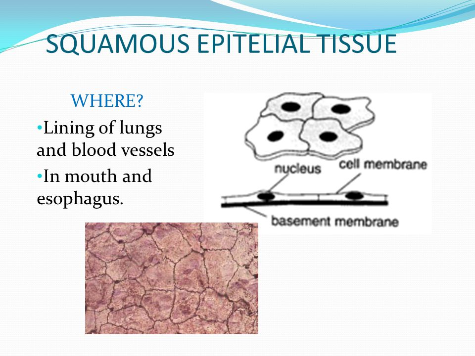 SQUAMOUS EPITELIAL TISSUE