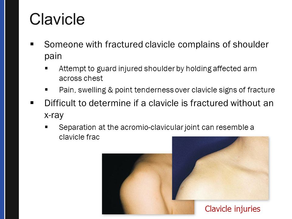 Clavicle Someone with fractured clavicle complains of shoulder pain