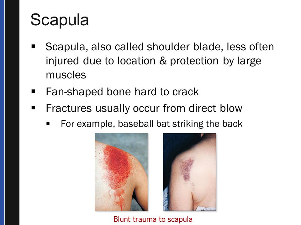Scapula Scapula, also called shoulder blade, less often injured due to location & protection by large muscles.