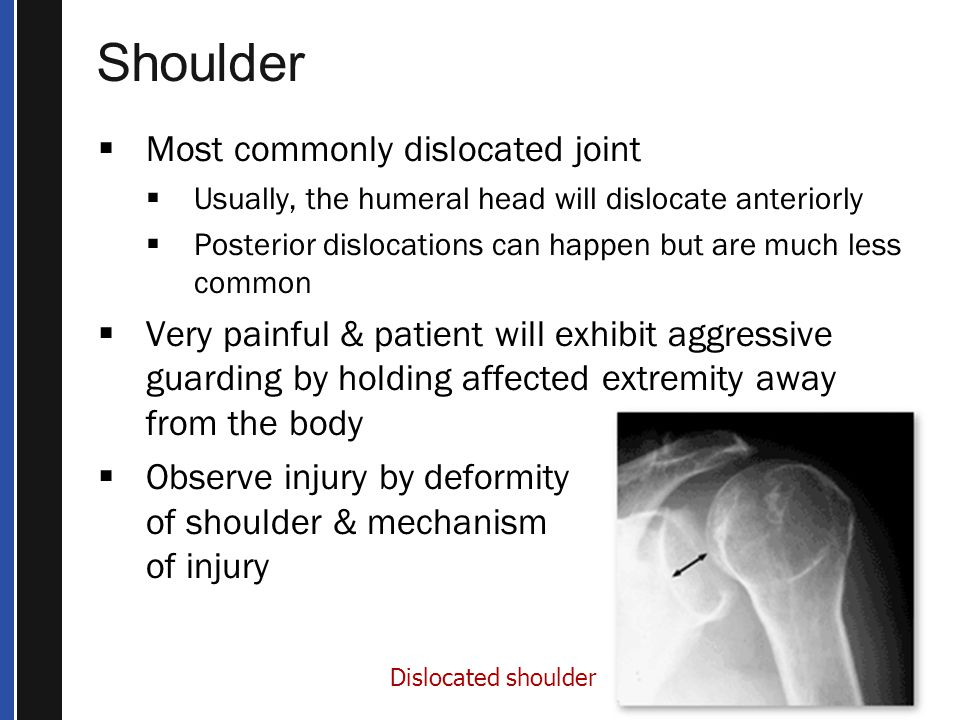 Shoulder Most commonly dislocated joint