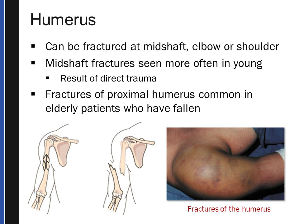Humerus Can be fractured at midshaft, elbow or shoulder