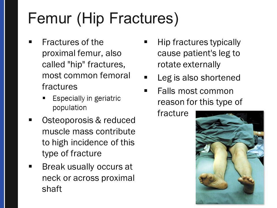 Femur (Hip Fractures) Fractures of the proximal femur, also called hip fractures, most common femoral fractures.