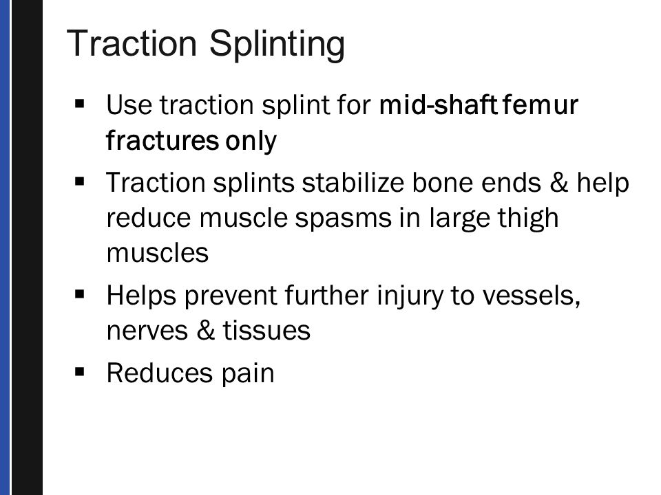 Traction Splinting Use traction splint for mid-shaft femur fractures only.