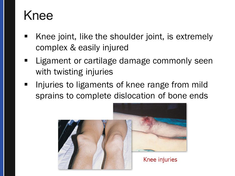 Knee Knee joint, like the shoulder joint, is extremely complex & easily injured. Ligament or cartilage damage commonly seen with twisting injuries.