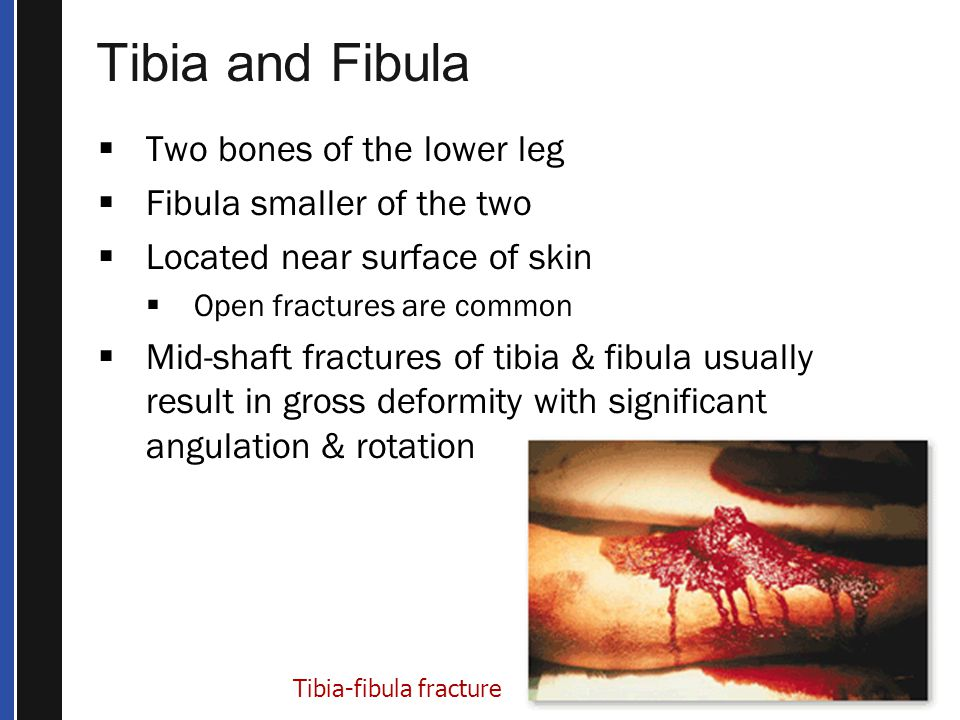 Tibia and Fibula Two bones of the lower leg Fibula smaller of the two