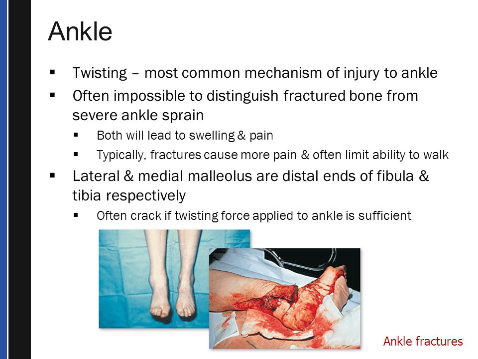 Ankle Twisting – most common mechanism of injury to ankle