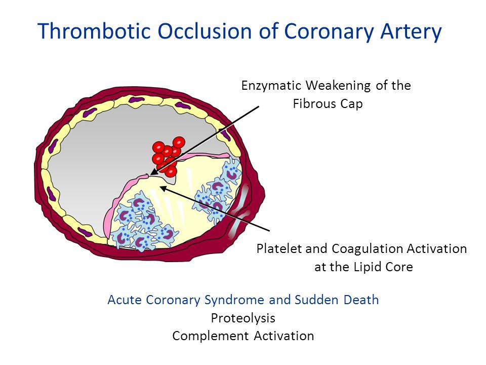 Thrombotic Occlusion of Coronary Artery