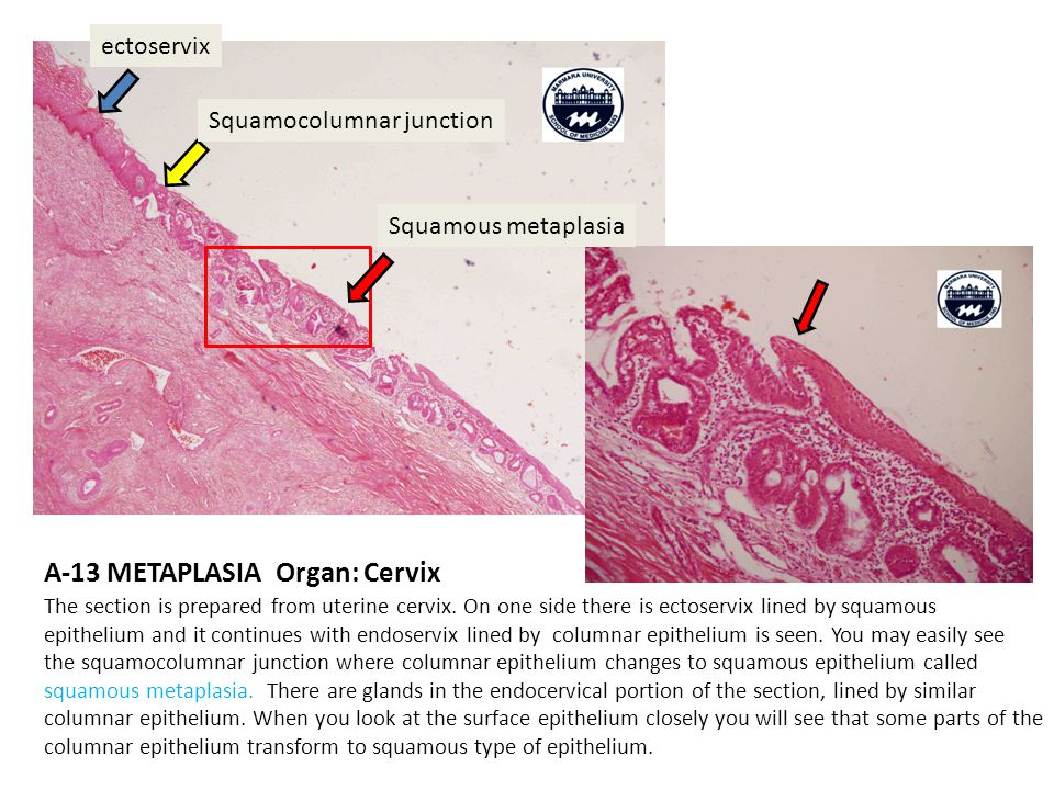 A-13 METAPLASIA Organ: Cervix