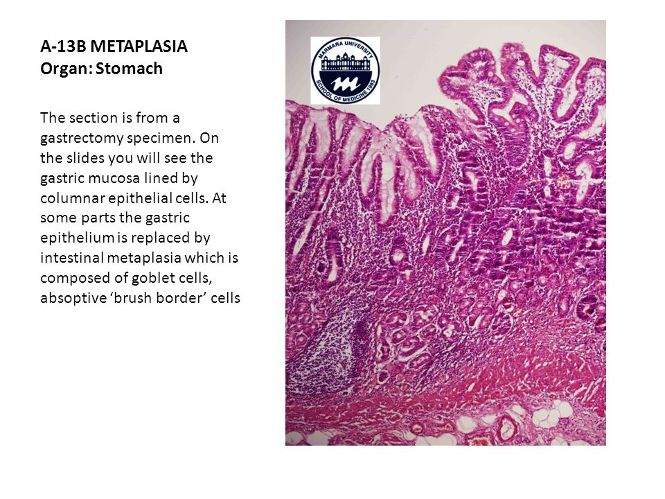 A-13B METAPLASIA Organ: Stomach