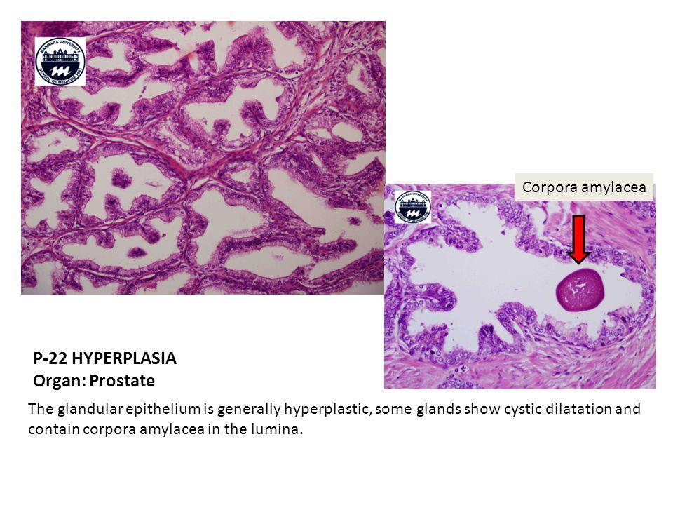 P-22 HYPERPLASIA Organ: Prostate