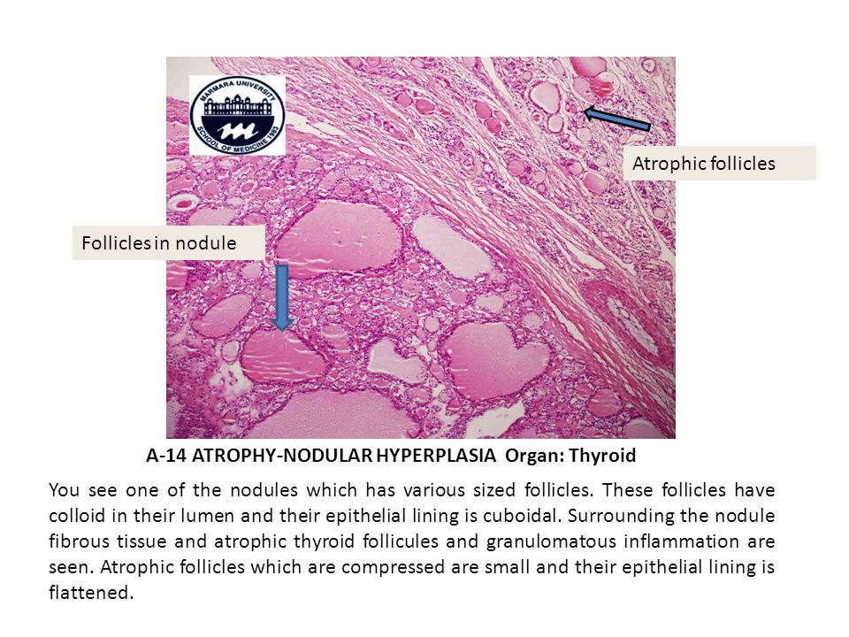 A-14 ATROPHY-NODULAR HYPERPLASIA Organ: Thyroid