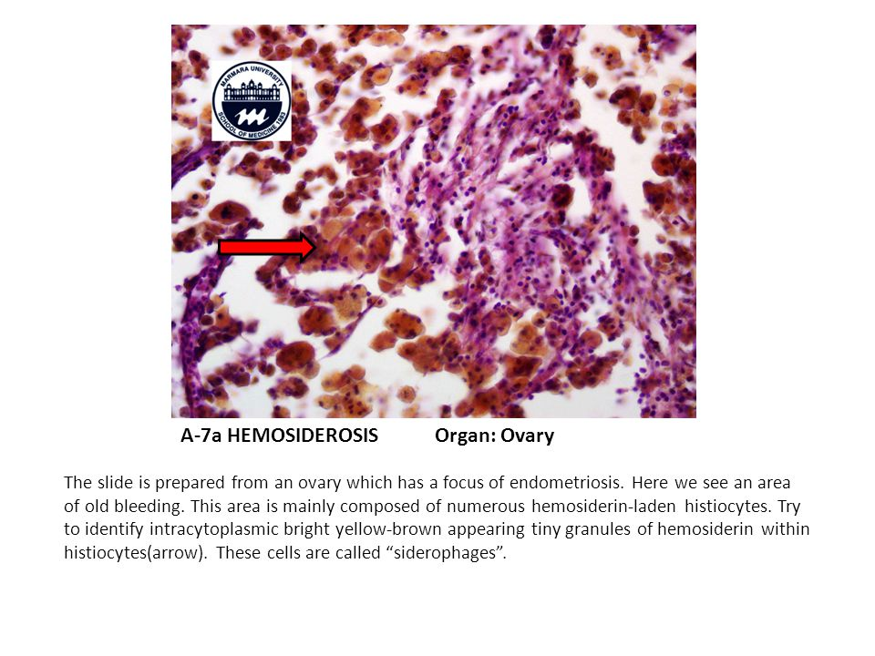 A-7a HEMOSIDEROSIS Organ: Ovary