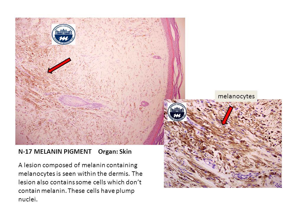 N-17 MELANIN PIGMENT Organ: Skin
