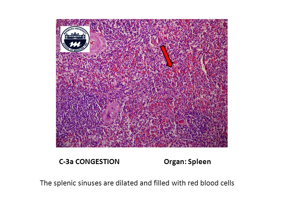 C-3a CONGESTION Organ: Spleen