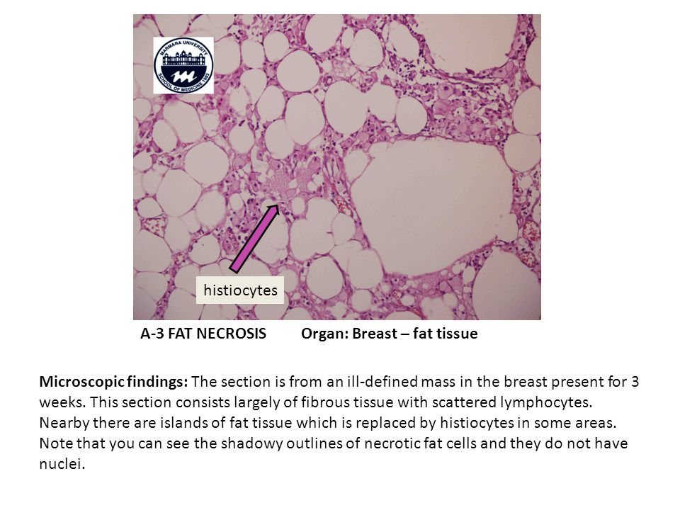 A-3 FAT NECROSIS Organ: Breast – fat tissue
