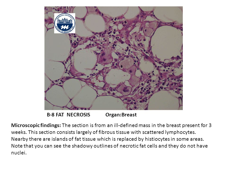 B-8 FAT NECROSIS Organ:Breast