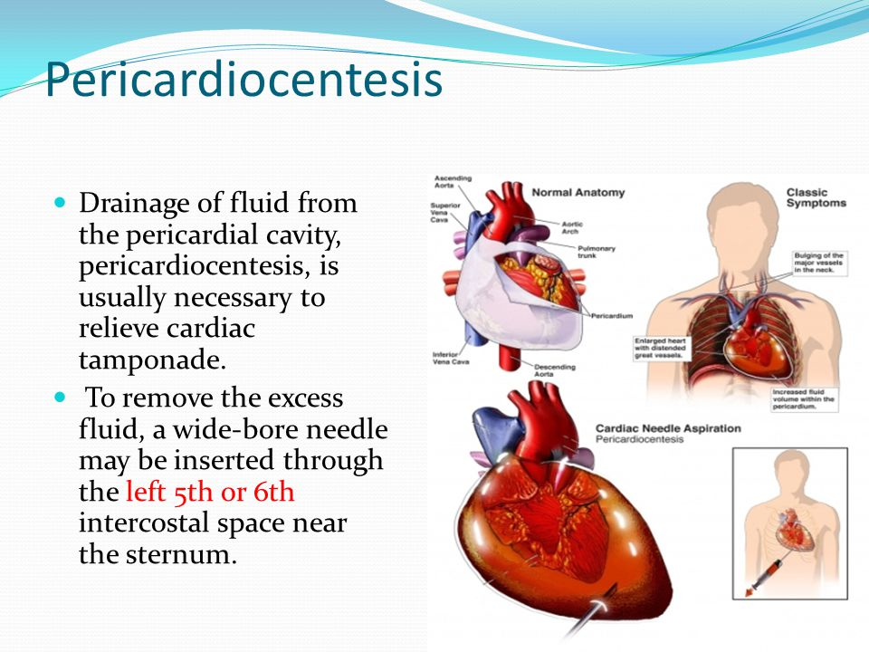 Pericardiocentesis Drainage of fluid from the pericardial cavity, pericardiocentesis, is usually necessary to relieve cardiac tamponade.