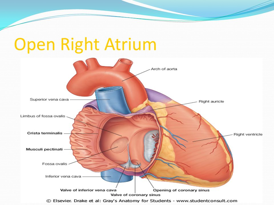 Open Right Atrium