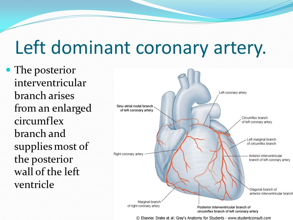 Left dominant coronary artery.