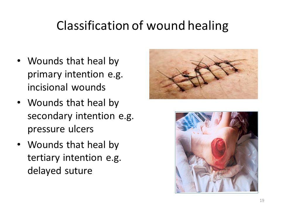healing the wounds of trauma pdf