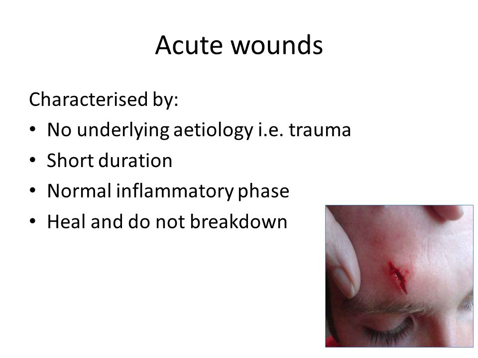 Acute wounds Characterised by: No underlying aetiology i.e. trauma