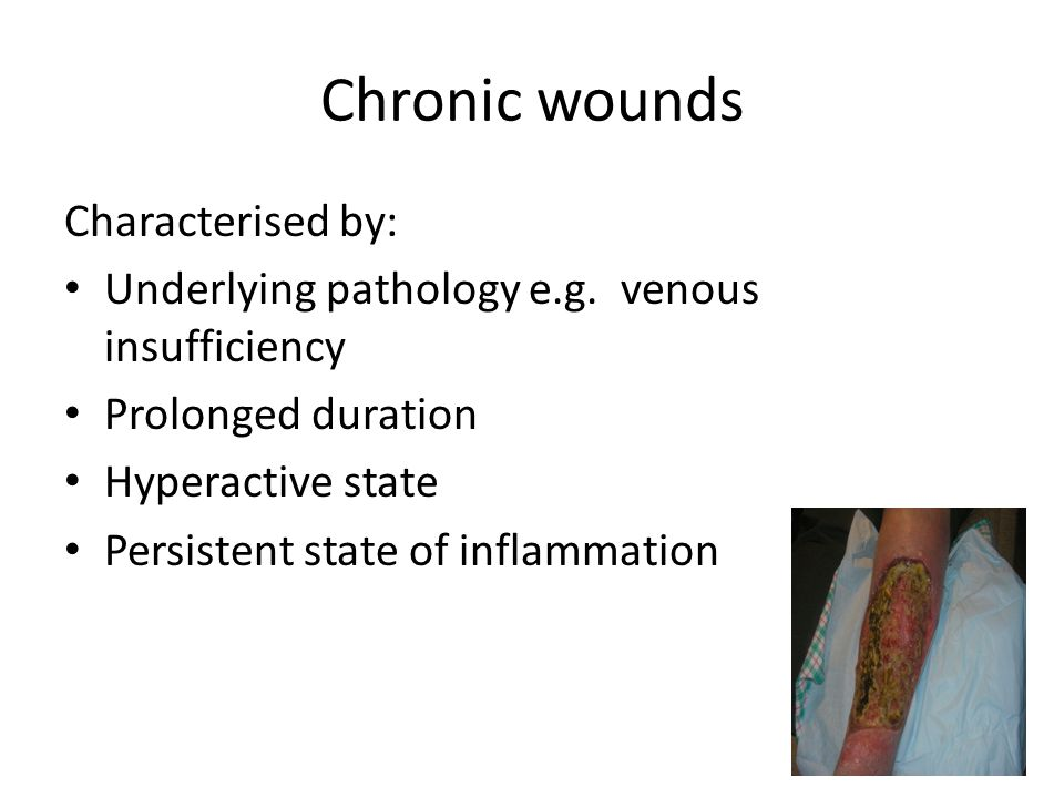 Chronic wounds Characterised by: