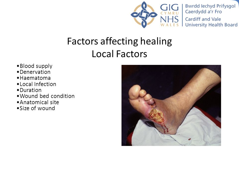 Factors affecting healing Local Factors