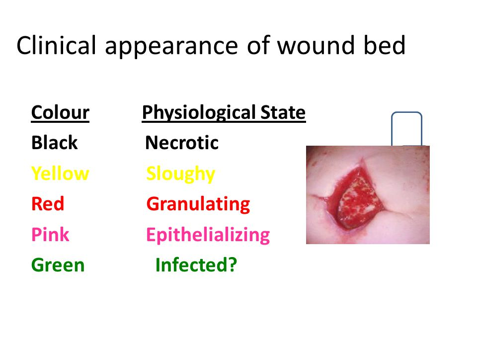 Clinical appearance of wound bed