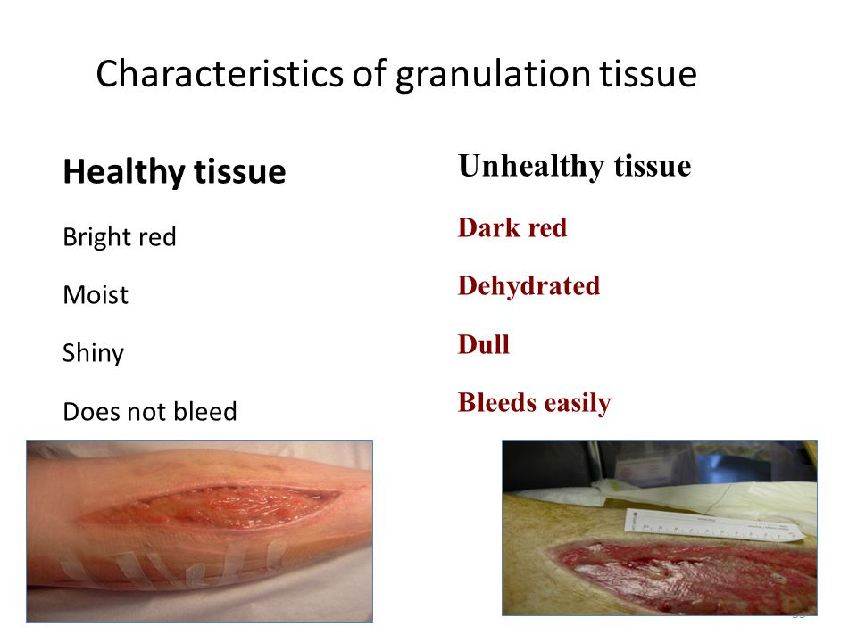 Characteristics of granulation tissue