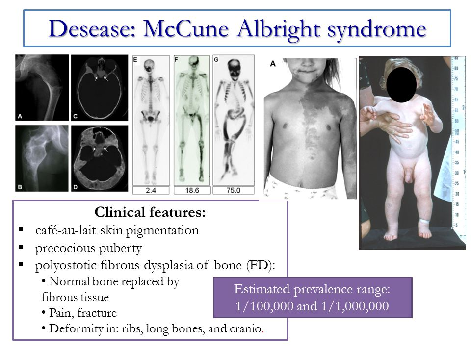 Desease: McCune Albright syndrome