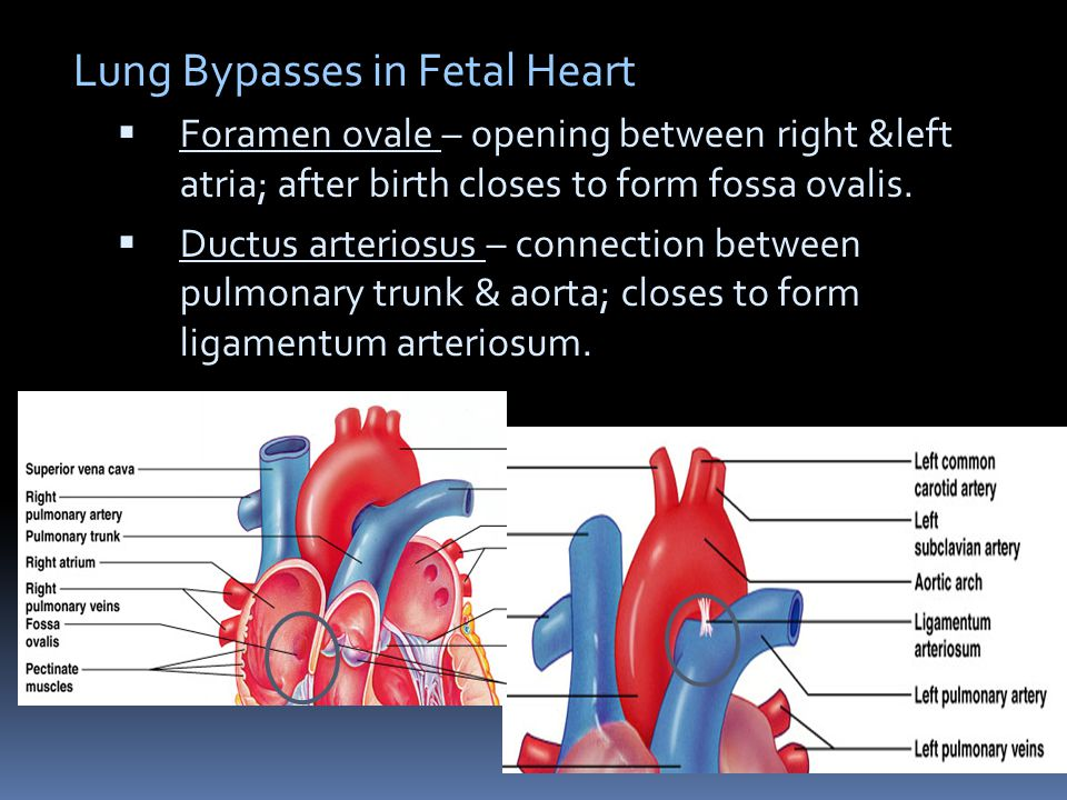 Lung Bypasses in Fetal Heart
