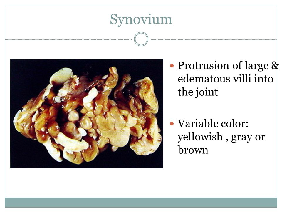 Synovium Protrusion of large & edematous villi into the joint