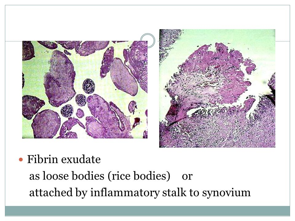 Fibrin exudate as loose bodies (rice bodies) or attached by inflammatory stalk to synovium