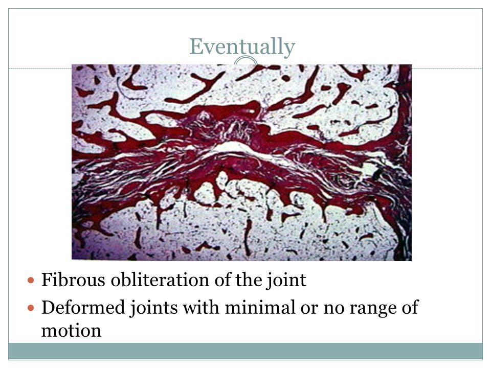 Eventually Fibrous obliteration of the joint