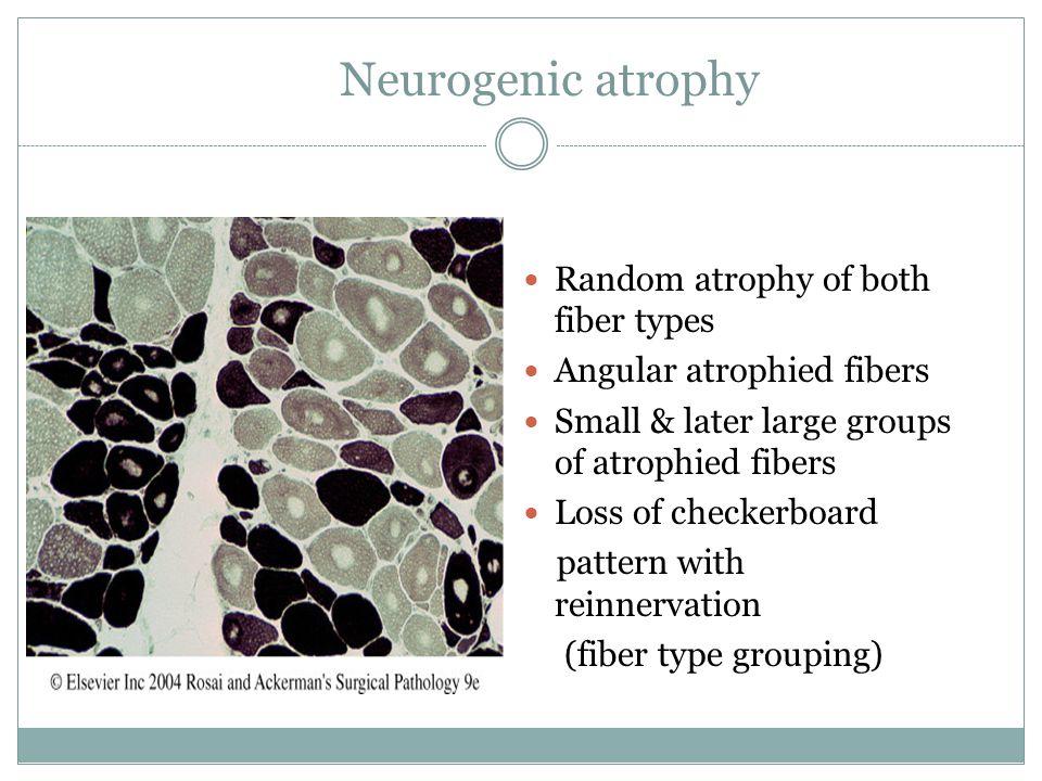 Neurogenic atrophy Random atrophy of both fiber types