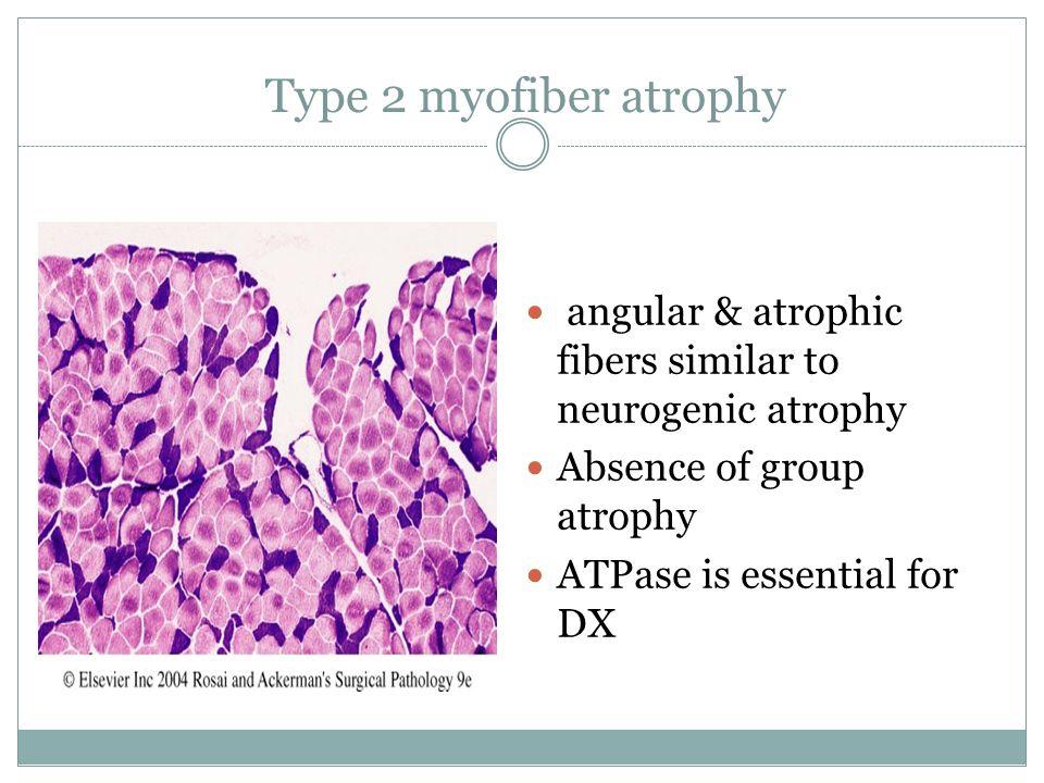 Type 2 myofiber atrophy angular & atrophic fibers similar to neurogenic atrophy. Absence of group atrophy.