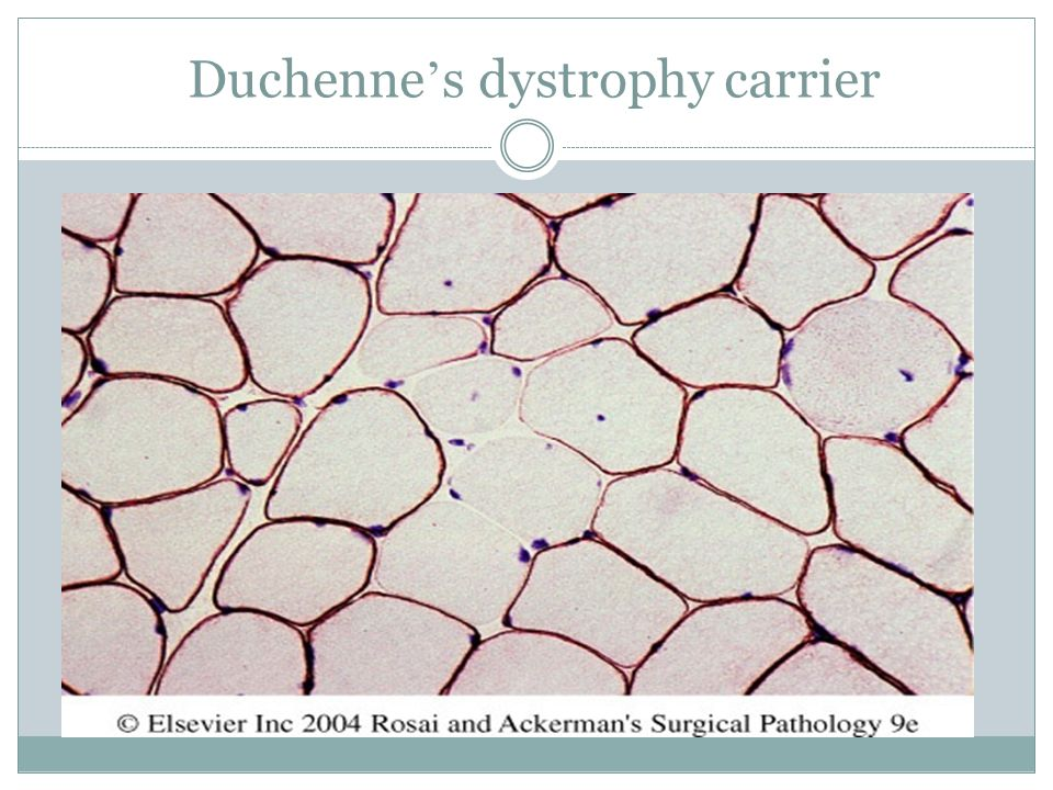 Duchenne's dystrophy carrier