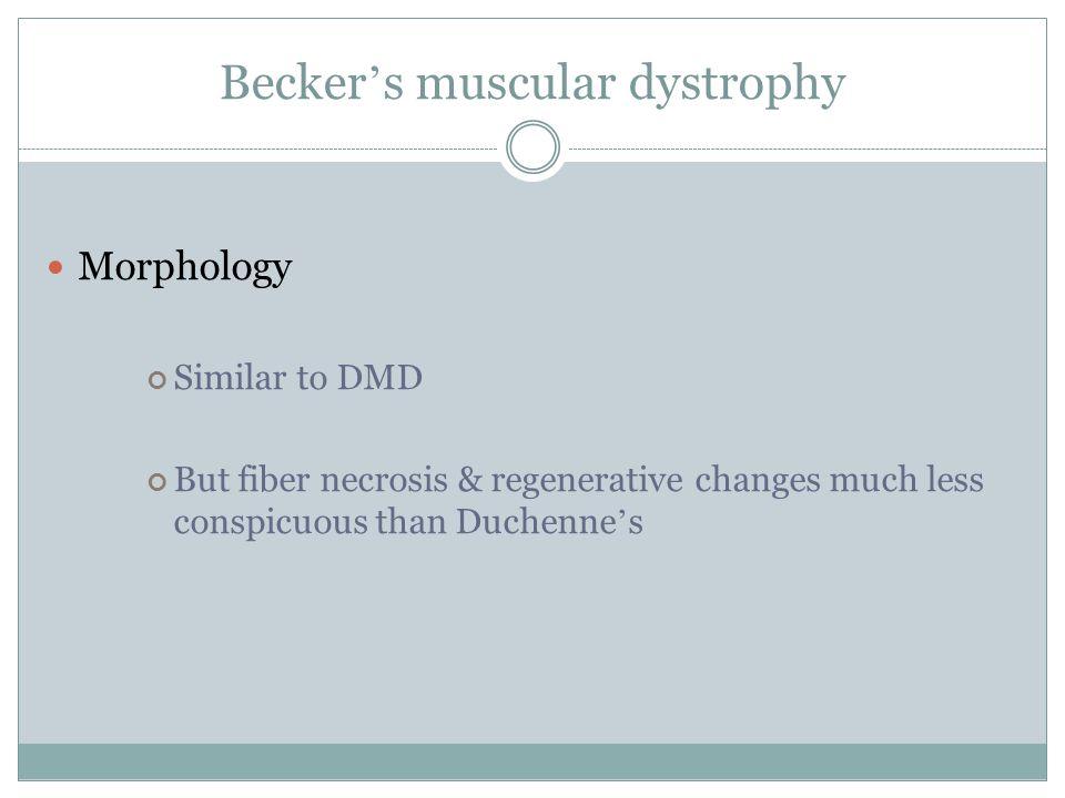 Becker's muscular dystrophy