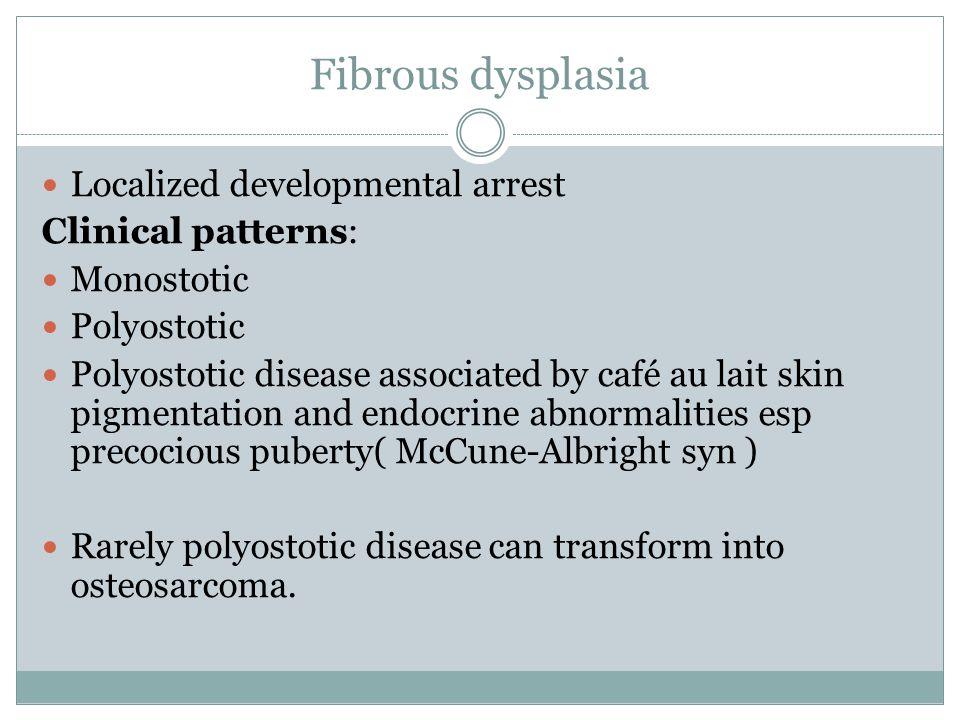 Fibrous dysplasia Localized developmental arrest Clinical patterns: