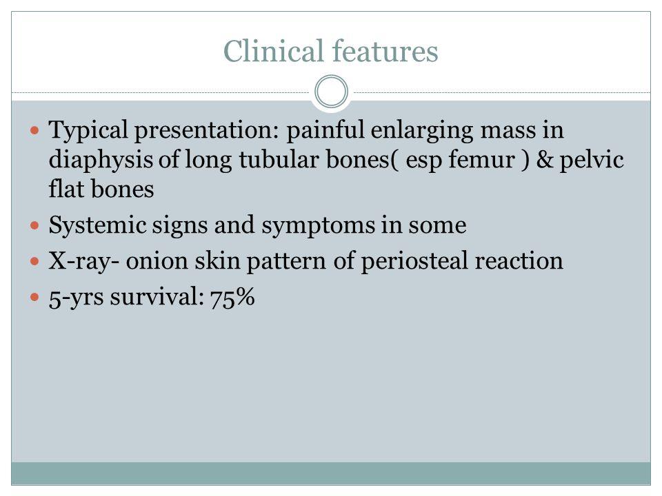 Clinical features Typical presentation: painful enlarging mass in diaphysis of long tubular bones( esp femur ) & pelvic flat bones.
