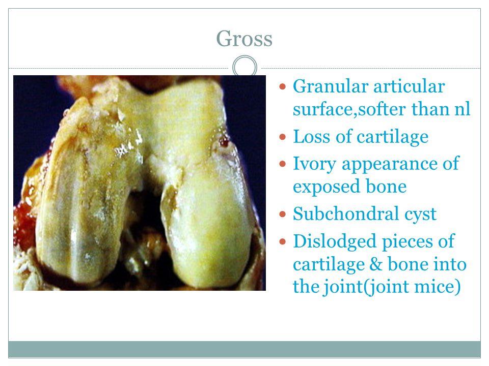 Gross Granular articular surface,softer than nl Loss of cartilage